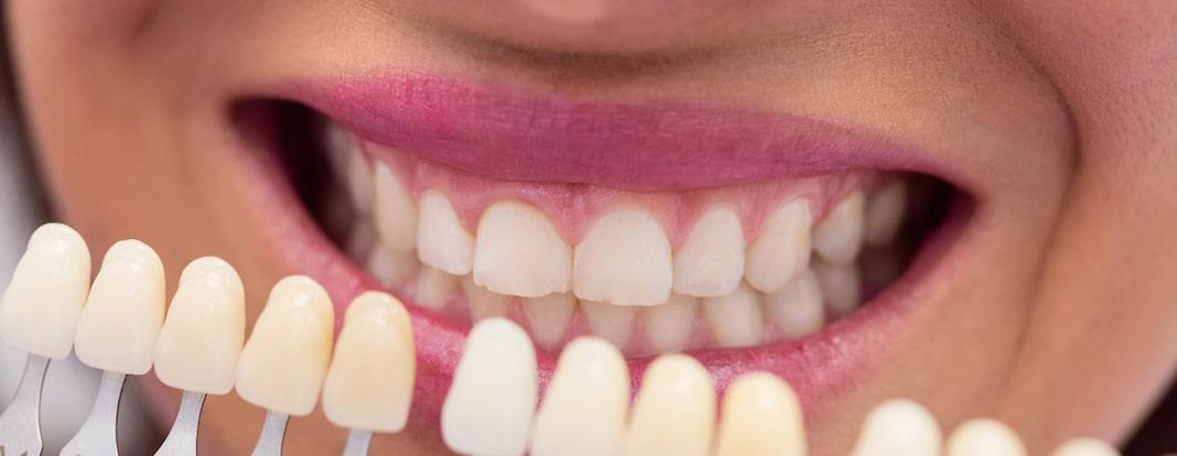 ポリリン酸ホワイトニングの程よい白さ効果 低刺激な理由とおススメ施術回数