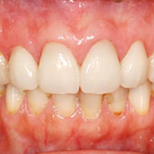 歯の隙間を治したい方