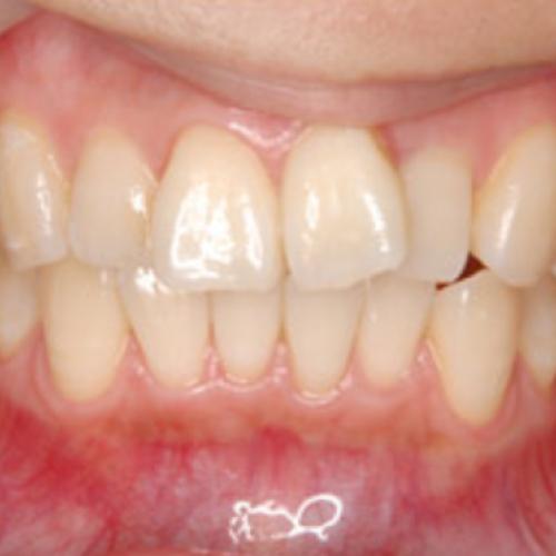 歯の色味を整えたい方