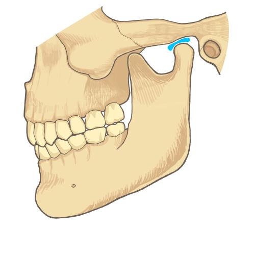 顎関節症の症状と要因