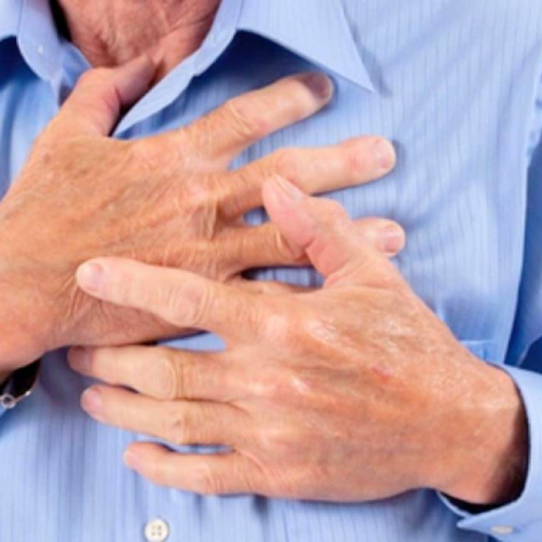 心疾患との関連